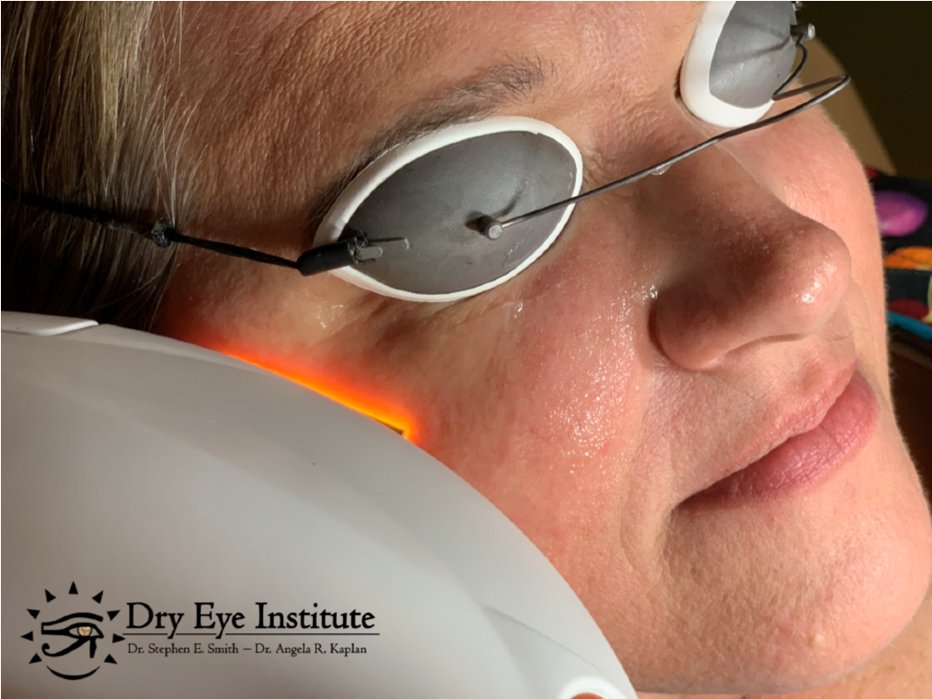 Eye Medical Treatments for Dry Eye from Eye Associates of Fort Myers